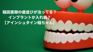 稲田直樹の歯並びが治ってる?入れ歯かインプラントか